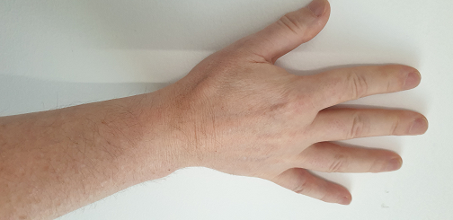 Trembling Me -  a personal blog about my Parkinsons Disease